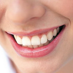 image of a girl with clean white teeth - ultrasonic cleaner for dentures